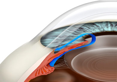 most common type of glaucoma is Primary Open Angle Glaucoma