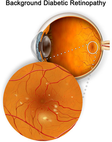 Nonproliferative retinopathy can cause blood vessel damage in the retina
