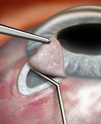 glaucoma surgery may be an option and can include removing a tiny piece of the trabecular meshwork